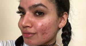 'Acne-positive' conheça o movimento que promove a aceitação da pele natural