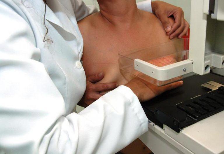 Estudo relaciona 12% das mortes por câncer de mama ao sedentarismo
