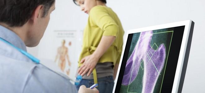A osteoporose é uma doença dos ossos que atinge principalmente as mulheres e que pode ser evitada. Foto Shutterstock